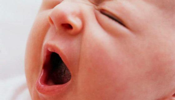 Säuglingsschnupfen - babytipps24.de
